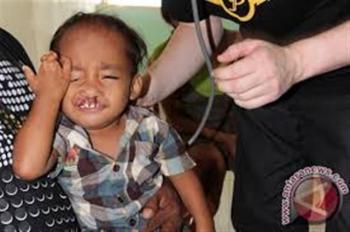 Operasi Bibir Sumbing – Perayaan Paskah GMIT