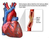 Efek Testosteron Terhadap Penyakit Jantung Koroner